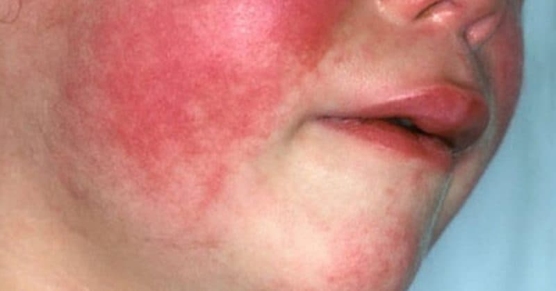 scarlet fever is making a comeback and parents need to know the, Cephalic Vein