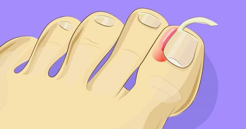 It\'s this easy to care for ingrown toenails at home. No need for an ...