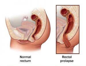 Burning Anus Rectum - Causes, Symptoms, Treatmen