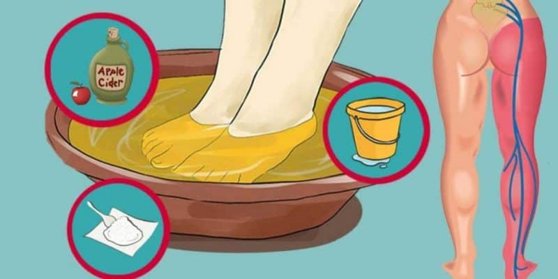 Successfully Relieve Sciatic Nerve Pain With This Simple 10 Minutes
