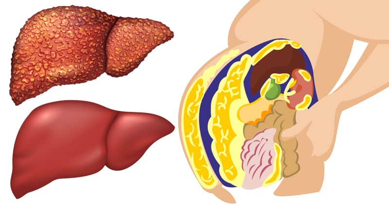 10 Foods That Boost Liver Function & Help Detox Your Body